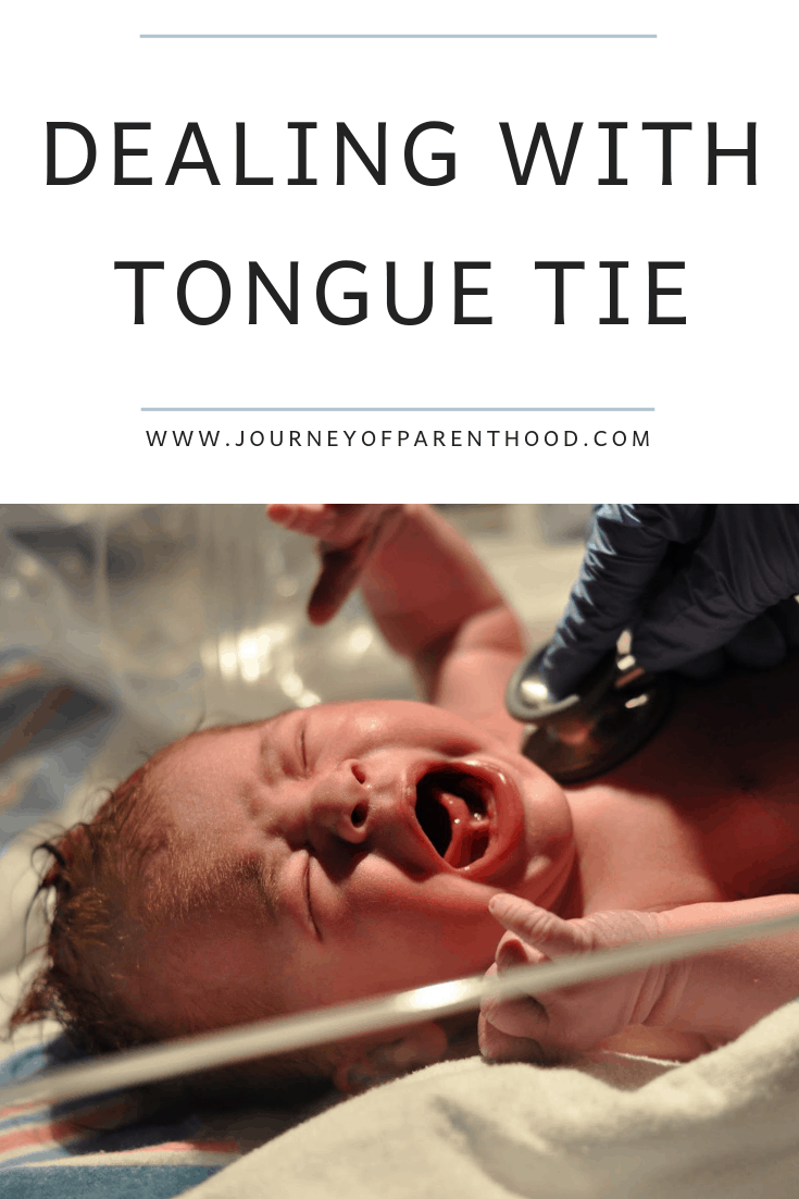 what to expect with tongue tie