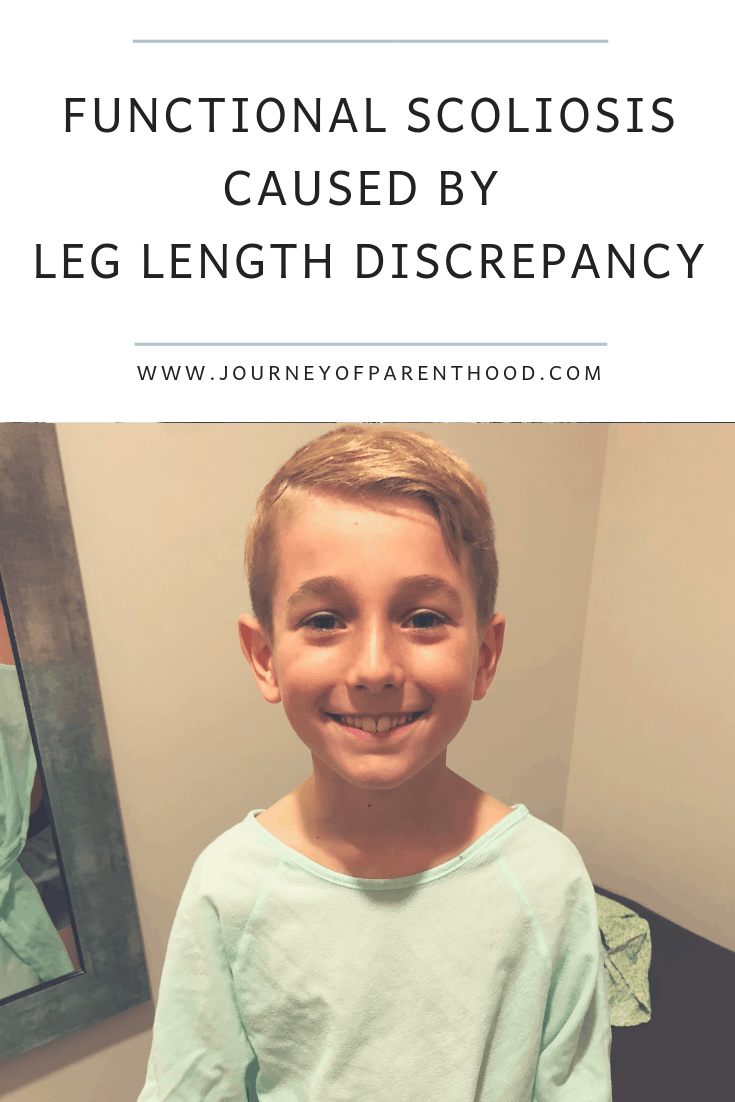 functional scoliosis caused by leg length discrepancy