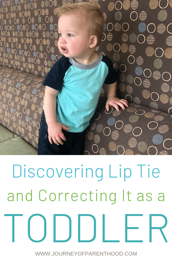 pinable image discovering lip tie and correcting it as a toddler