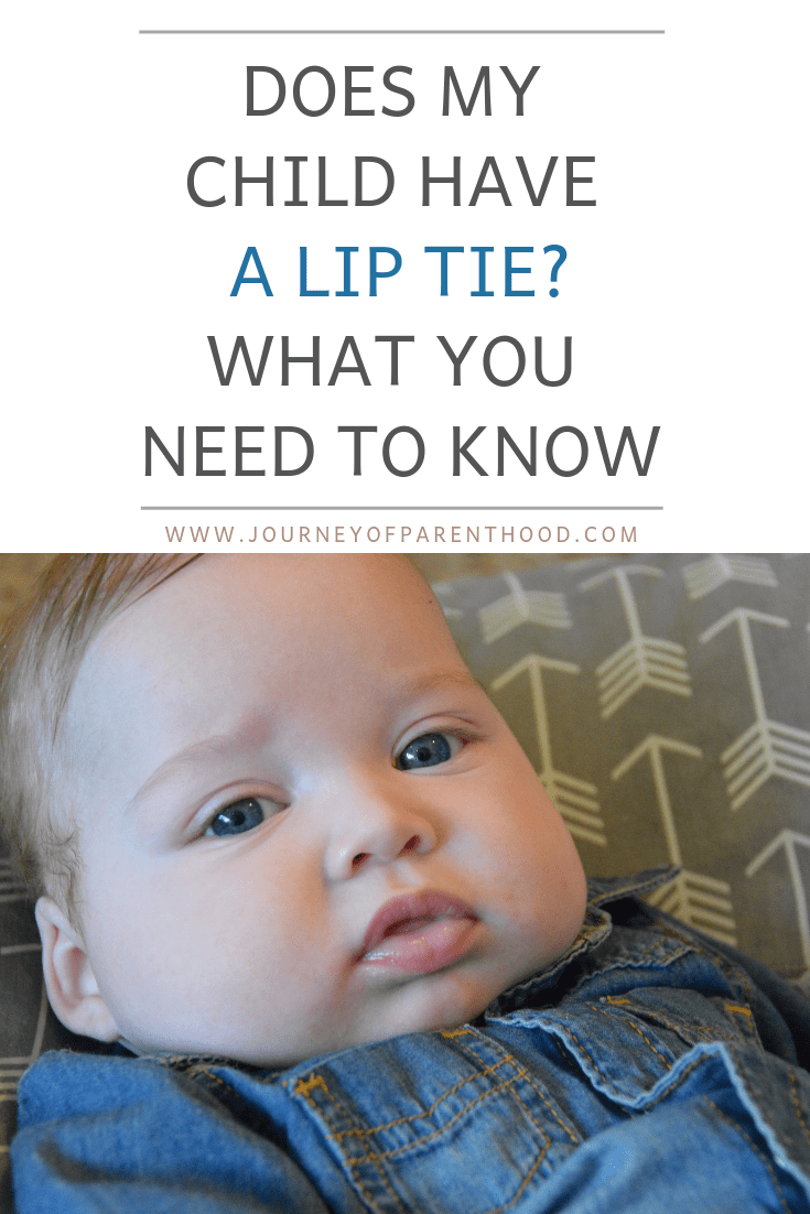 pinable image: does my child have a lip tie? what you need to know