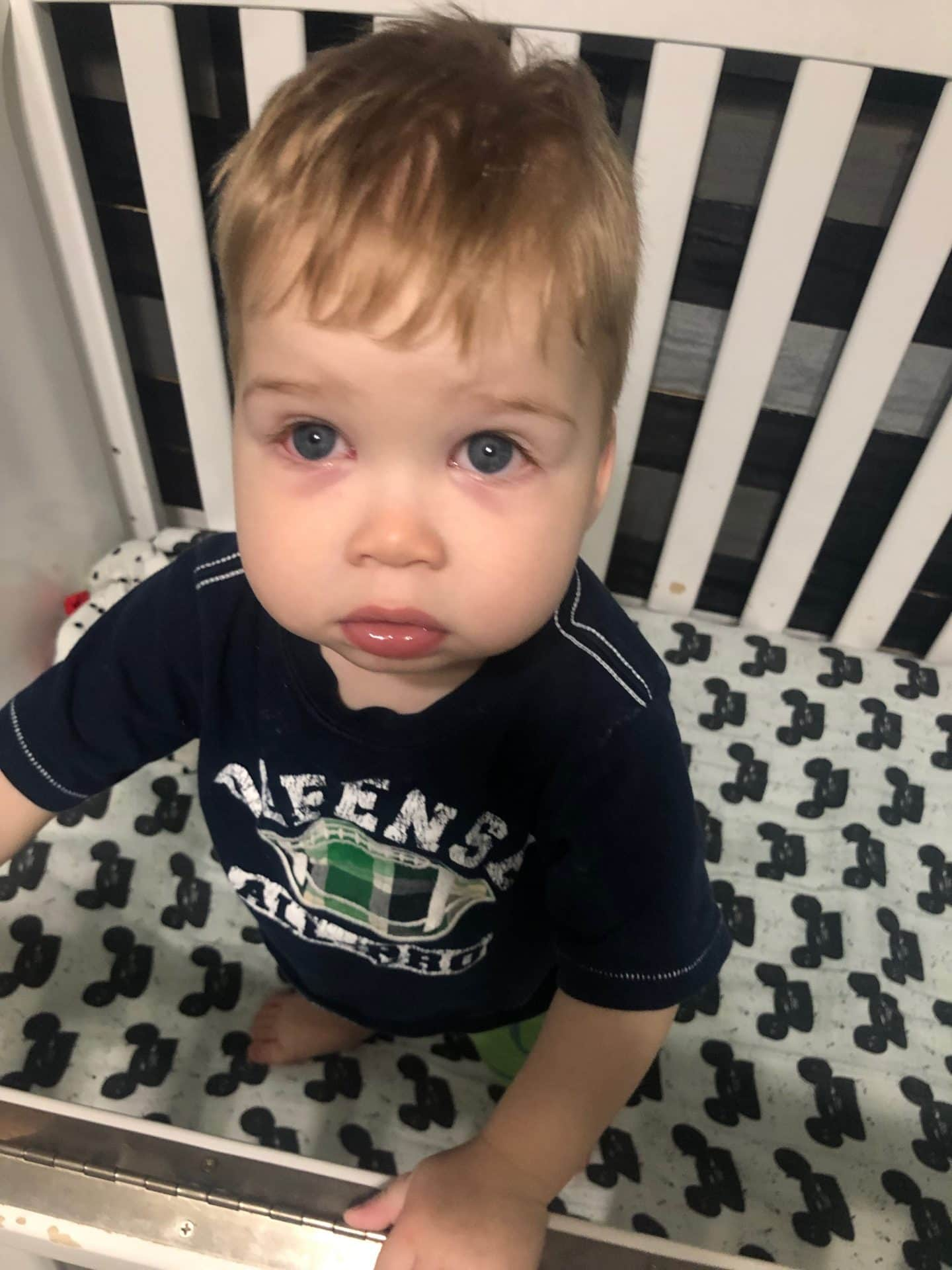 pink eye in toddler