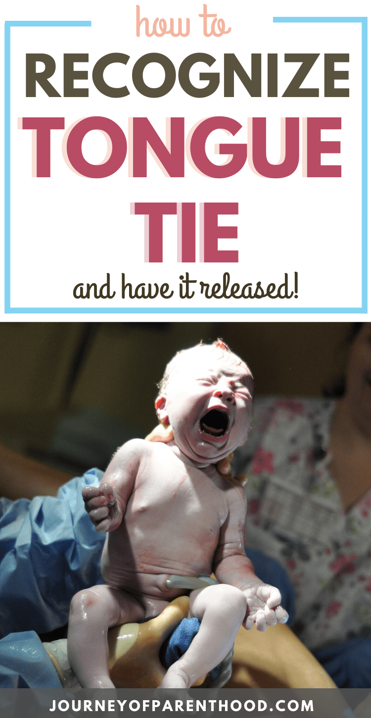 how to recognize tongue tie and have it released